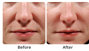 The before and after results of dermal fillers