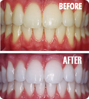 before and after examples of teeth whitening in North London