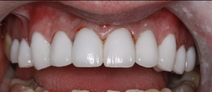 Very white teeth after teeth whitening in crouch end