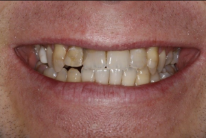 Smile before teeth whitening in crouch end