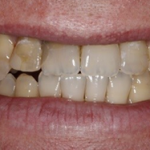 Yellow teeth before teeth whitening in north london