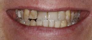 Yellow teeth before teeth whitening in north london