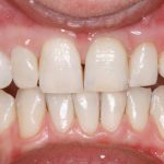 straight white teeth from the dentist in north london