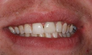 A white smile after teeth whitening in north london