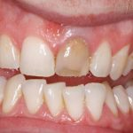 a discoloured tooth before teeth whitening in north london