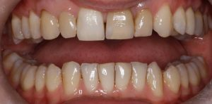 example of dental care in crouch end