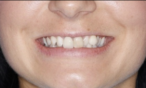 Smile before six month smiles treatment
