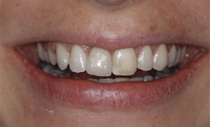 a smile after 6 month smiles teeth straightening in north london