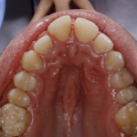 teeth prior to six month smiles