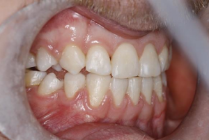 Teeth following 6 month smiles treatment in north london