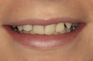 a mouth before 6 month smiles orthodontics in crouch end