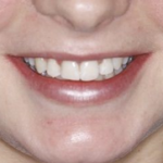 An example of the 6 month smile orthodontics in crouch end