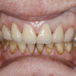 Smile after teeth whitening in north london