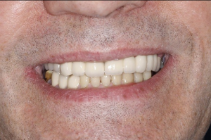A smile after dental implants in north london