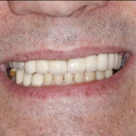 Ian after his dental implants in north london