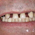 A smile before dental implants in north london