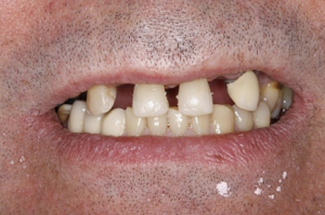 Ian before his dental implants in north london