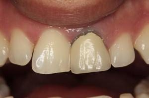 teeth before teeth whitening in north london