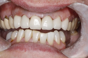 Teeth after dentistry in north london