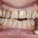 A set of teeth before dentistry in crouch end