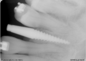 An xray of dental implants in north london