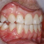 Teeth before 6 month smiles in north london