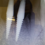 An image of the dental implants from our Crouch End dentists