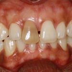 A discoloured tooth prior to teeth whitening in North London