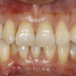 teeth getting dental treatment in north london