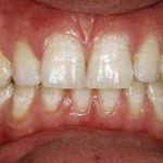 A set of teeth after teeth whitening in North London