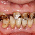 teeth before dental implants