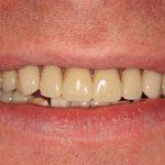 teeth after dental implants