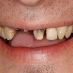 missing tooth before dental implant