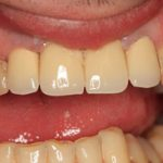 teeth after a dental implant in crouch end