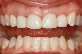 teeth after teeth whitening in crouch end