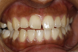 crooked teeth before 6 month smiles treatment