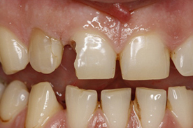 a tooth before dental overlay procedure at our dentist in north london