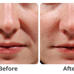 Woman before and after dermal fillers in north london