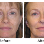 woman before and after dermal fillers