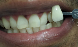A set of white teeth after teeth whitening in North London