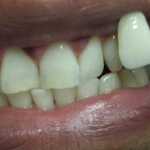 Teeth after teeth whitening in north london