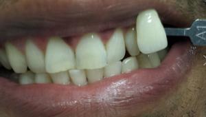 Teeth after teeth whitening in north london