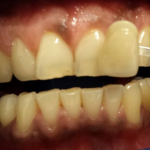 A set of teeth before teeth whitening in north london