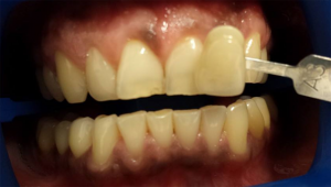A set of yellow teeth before teeth whitening in North London