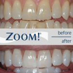 Comparing teeth before and after zoom whitespeed teeth whitening in north london