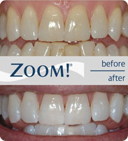 before and after examples of teeth whitening with zoom machine in North London