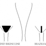A diagram showing various types of bikini line laser hair removal in north london