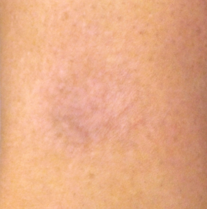 The skin after the laser tattoo removal in north london