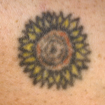 A tattoo before laser tattoo removal in North London