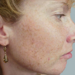 A woman with pigmented lesions to be removed